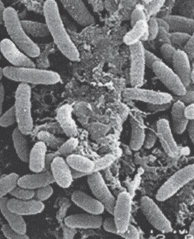 Biofilm di Listeria (Cortesia: Ecolab Italia srl)