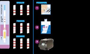 Analisi quantitativa lateral flow dell'aflatossina M1: miti e realtà dei nuovi test rapidi