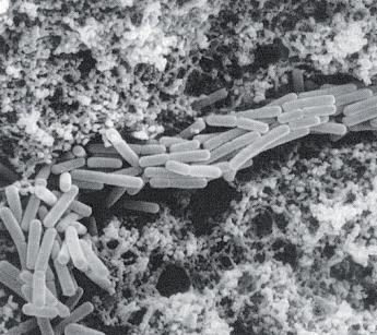 Figura 1 – Immagine al microscopio elettronico di cagliata contenente lattobacilli termofili da sieroinnesto naturale